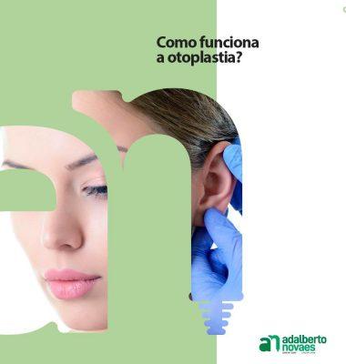 Como funciona a otoplastia?